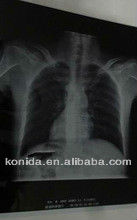 x-ray film chemicals,x ray film industrial,diagnostics veterinary