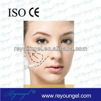 Top 3 China manufacturer of Hyaluronic Acid Dermal Filler CE marked