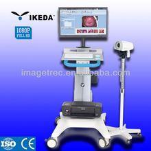 optical colposcope diagnostic/colposcope software/plastic vagina images picture