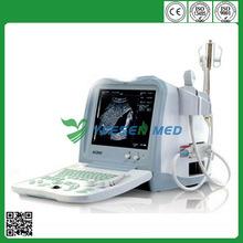 10 inch high resolution CRT monitor Good price YSB0102 portable digital ultrasound scanner