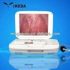 Image Storage, LED light source portable medical endoscope usb camera