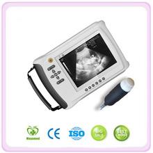 ( MA3018) Digital portable laptop ultrasound scanner