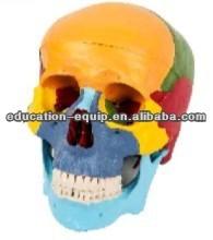 SE31252 Skull Separation Model