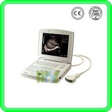 MSLTU07 laptop full digital ultrasound scanner