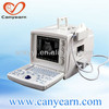 China medical cardiac portable ultrasound machine price