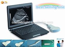2014 hot medical ultrasonic laptop/portable/mini ultrasound