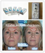 keep young anti-wrinkle hyaluronic acid filler derm filler Singfiller fine 0.1-0.15mm 2ml frown lines
