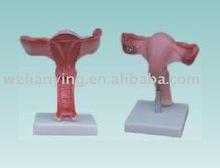 uterus model / Anatomical uterus model / PVC uterus model