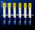 Suero de la sangre del tubo de ensayo ( 5ml amarillo tubo sst )