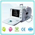 completo u635 digital de ultrasonido de diagnóstico del sistema