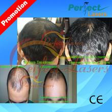 se buscan distribuidores 670nm estacionaria para el cabello tratamiento de la pérdida de la máquina