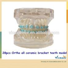 B7-03 Model 28pcs Ortho all ceramic bracket teeth model
