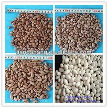 Baishake/Japanese & Types of Kidney Beans