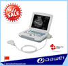 Laptop ultrasound machine & ultrasound scanner portable & gynecological equipment