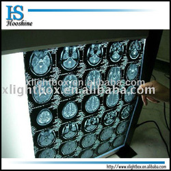 x-ray film viewer/one section/self-induction/led