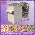 Zhengzhou whirlston de casca de soja máquina/descascador de soja/feijão máquina de esfola