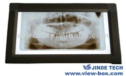 hot sell x ray dental film viewer,dental view box,dental x-ray film viewer and x ray illuminators