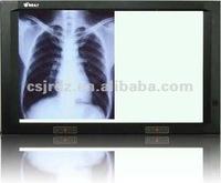 LED negatoscope, x ray film viewer ,x ray film illuminatorled and x ray medical view box