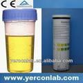 urina testes de bilirrubina