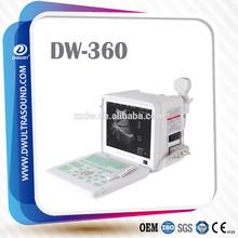 Venta maquina de ultrasonido& ultrasonido maquina barata dw360 portatil