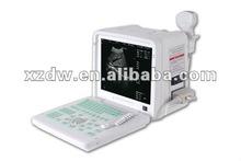 portable full digital ultrasonic diagnostic