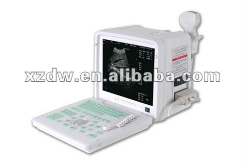 portable full digital ultrasonic diagnostic