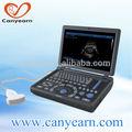 Cardiograma electrocardiograma de la máquina con la ecografía