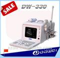 completa portátil digital de ultrasonido de diagnóstico del escáner