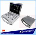Dw-c60 corpo umano scanner e scanner a colori ad ultrasuoni doppler& ultrasonografia vascolare