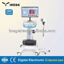 electronic colposcope software/oem usb digital microscope