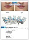China Lip filler injectable derm filler Singfiller Derm 0.15-0.28 mm lip