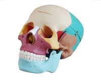 Skull bone separation model