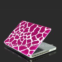 giraffes  Surface treatment rubberized Hard case for macbook pro13""