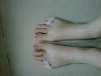 foot care small Toe Gel Bunion Guard Gel bunion toe seperator