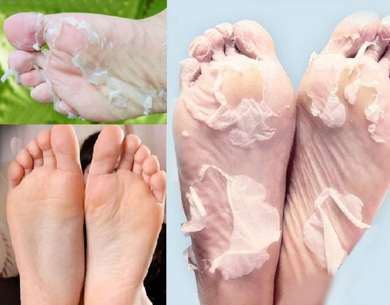 Foot peeling masque de renouvellement enlever la peau morte cuticules talon exfoliant, a074 soins des pieds