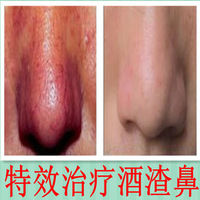 Effects of potent medicine liquid water treatment rosacea rosacea net red nose red nose redness invalid refund