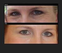 Anti-Wrinkle Patch for Eyes sleep mask gel anti aging  Under Eye Gel Patches 20pairs pack free shipping sleep eye mask