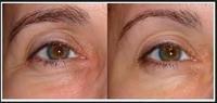 anti aging Eyes Secret Collagen and Q10 Anti-Wrinkle Eye Gel Patches | 20pairs pack free shipping sleep eye mask night  mask