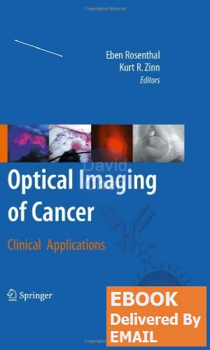 [EBOOK PDF]Optical Imaging of Cancer: Clinical Applications-1-Eben Rosenthal, Kurt R. Zinn(China (Mainland))