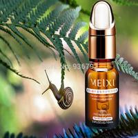 AFY 2014 snail extract Liquid face cream acne Moisturizing whitening moisturizing Face Care Cream Serum
