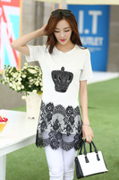 New Arrival 2014 Summer Women White and Black Short-sleeve T-shirt Slim Lace Patchwork Shirt Top Plus Size XL-4XL