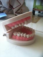 1 1 consumables 1 denture model model