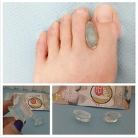 Set of 2 Clear Silicone Foot Separator Valgus Braces, Small Size