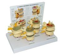 4 stages diseased vertebrae model