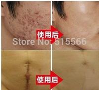 1pcs Nuobisong Remove Scar Cream Remove Acne Spots Remove Striae Gravidarum Pigmentation Corrector Anti-Aging Moisturizing 15ml