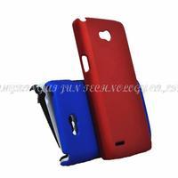 1pcs New arrival luxury Matte Hard Plastic Case for LG L80 Cover Case