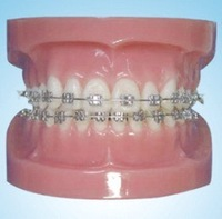 Free Shipping Dental Study Model Study Model with Fixed Braces on Teeth(Normal)