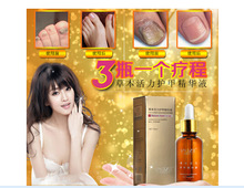 Hot Sale 3pcs Fungal Nail Treatment Essence Nail and Foot Whitening Toe Nail Fungus Removal Feet Care Nail Gel Free Shipping