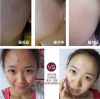 Top Chinese propolis scar repair gel remove scar cream for surgical scars burn scar Cesarean section spot repair 40g