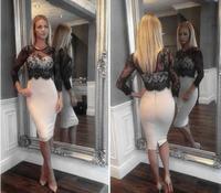 new 2015 women lace dress sheath women clothing Lace tropical vestidos bandage women dress Slim sexy club Party Pencil Dress